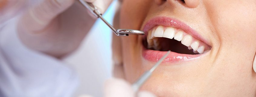 Implantologia dentale Roma